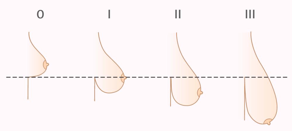 Развитие птоза груди