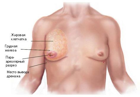 Суть операции при гинекомастии