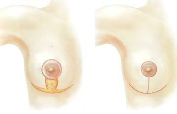 Суть вертикальной подтяжки груди