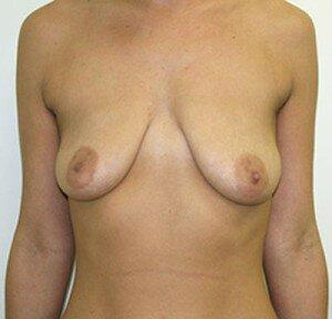 Так выглядит птоз груди
