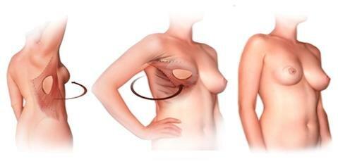 Использование лоскута кожи и мышц