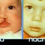 Заячья губа до и после