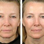 Плазмолифтинг лица до и после