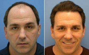 Результат после пересадки волос