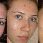 салициловый пилинг фото до и после