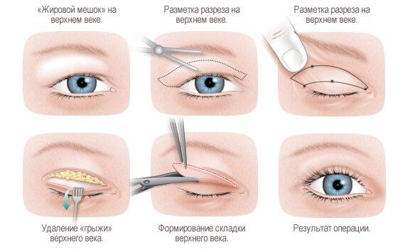 Операция по устранению азиатского разреза глаз