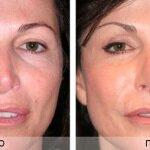 озонотерапия лица до и после