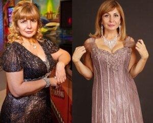Агибалова до и после пластики