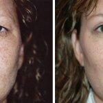 безоперационная блефаропластика фото до и после