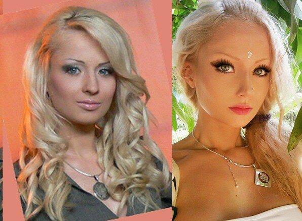 валерия лукьянова до и после операции: