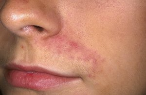 Лечение дерматита препаратом Скин-кап