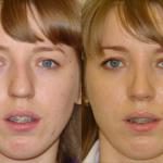 Ринопластика кончика носа фото до и после