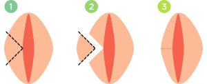 Лабиопластика больших половых губ