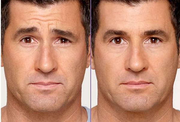 Ботокс для мужчин до и после процедуры