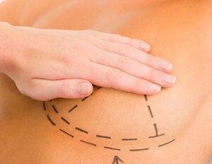 Надрезы для грудных имплантов