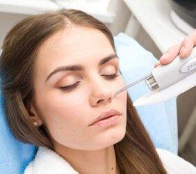 Лазерное удаление рубцов на лице