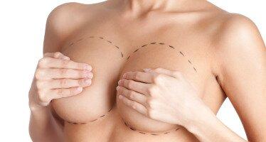 Эндопротезирование с мастопексией
