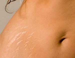 Причины появления атрофических рубцов
