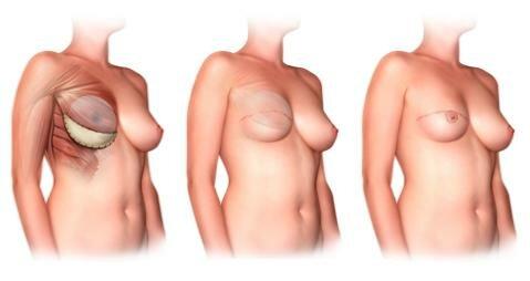 Использование кожи и иимпланта