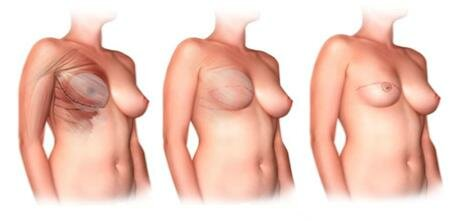 Использование имплантов
