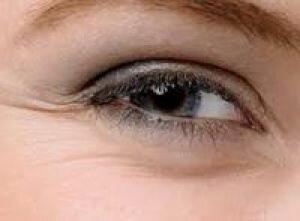 Мимические морщины под глазами