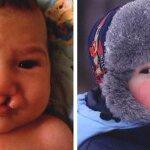 Заячья губа фото до и после