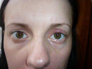 Фото: отеки под глазами после слез
