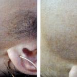 Эпиляция александритовым лазером до и после