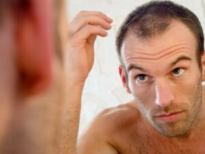 Показания к пересадке волос