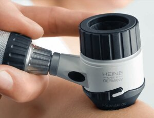 Устройство дерматоскопа