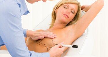 Периареолярная мастопексия